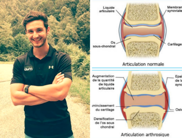 Sport et arthrose : association gagnante ?